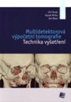 Multidetektorová výpočetní tomografie - Technika vyšetření