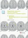 Magnetická rezonance nervové soustavy - radiologické a klinické aspekty. II, Epilepsie, neurodegenerativní onemocnění mozku