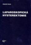 Laparoskopická hysterektomie