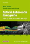 Optická koherenční tomografie - Klinický atlas sítnicových patologií