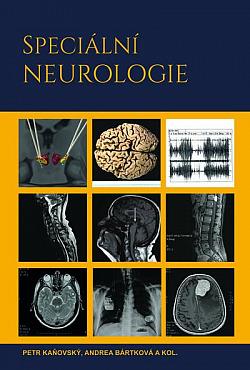 Speciální neurologie