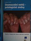 Onemocnění nehtů - patologické změny